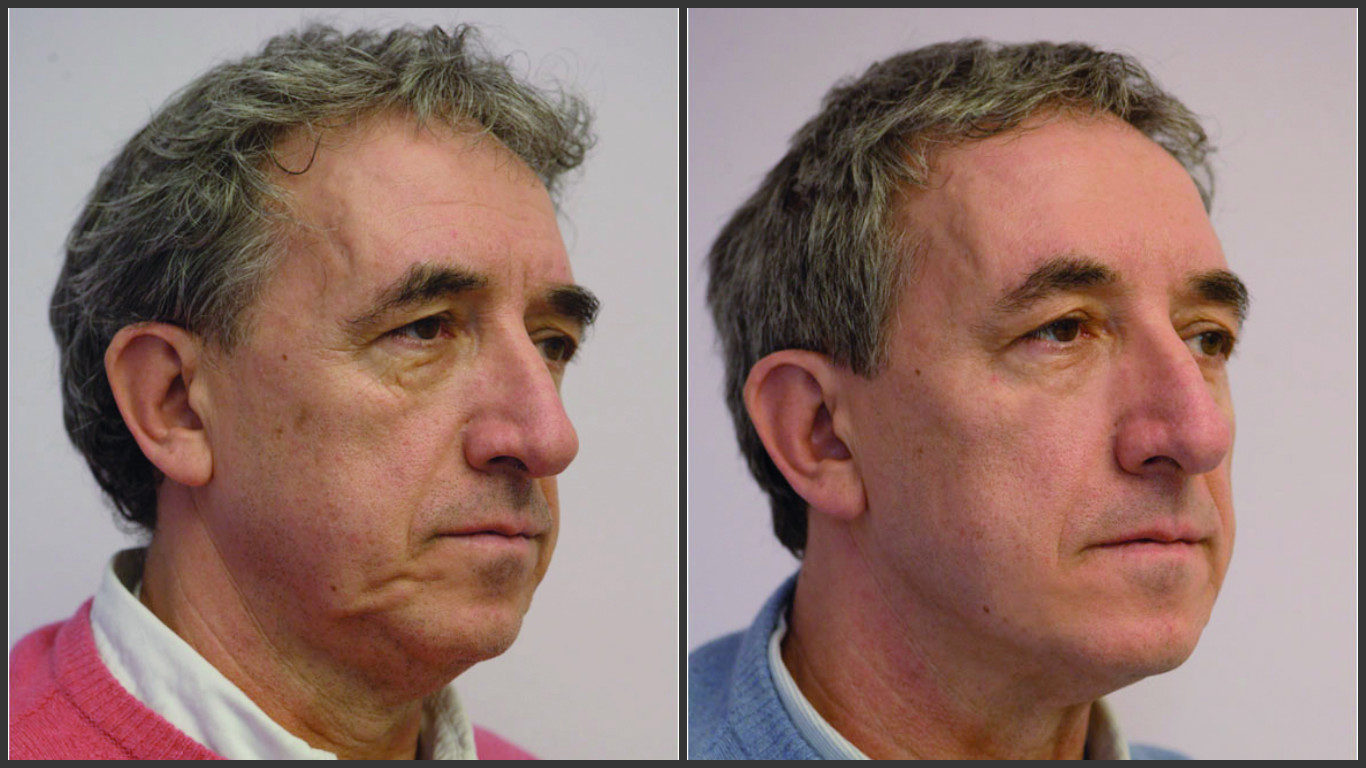 Man before and after non-surgical face lift